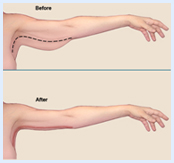 Before and after illustration of an arm showing the results of an arm lift procedure in Costa Rica.