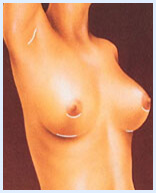 Illustration of a woman showing how a breast implants procedure is accomplished.