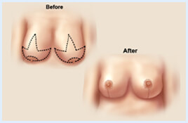 Before and after Illustrations of a woman showing how a breast lift with reduction is accomplished.