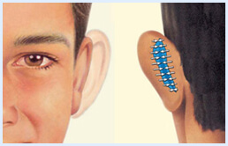 Before and after Illustrations of a man showing how an ear surgery is accomplished.