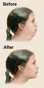 Before and after illustration of a woman's neck showing the results of a neck sculpting (neck and chin liposuction) in Costa Rica.