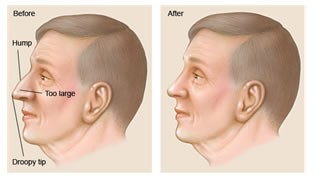 Before and after illustration of a man's nose showing the results of a nose surgery (Rhinoplasty) in Costa Rica.