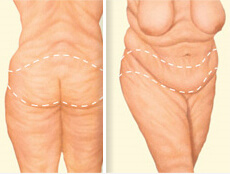 Before and After illustration of the results of a Post Weight-Loss Contouring procedure in Costa Rica.