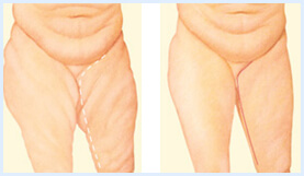 Before and After illustration of the results of a Thigh Lift procedure in Costa Rica.