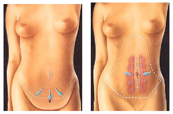 Before and After illustration of the results of a Tummy Tuck procedure in Costa Rica.