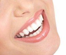 Picture of a smiling woman happy with her Costa Rica veneers.
