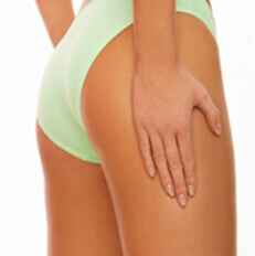 Picture of a woman showing the area where she had a Laser Stretch Marks Removal Treatment in Costa Rica.