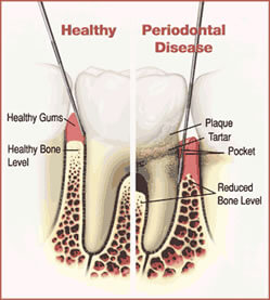 Picture of a Periodontal procedure in Costa Rica.