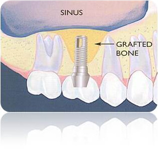 Illustration of a Sinus Lift procedure in Costa Rica.