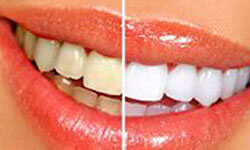 Picture of a smiling woman happy with her Costa Rica dental whitening.