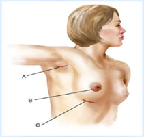 Illustration of a woman showing how a breast lift is accomplished.