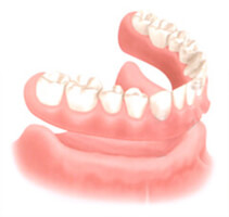 Illustration of how a denture fits over the gums in the lower jaw.
