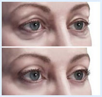 Before and after Illustrations of a showing how an eyelid lift is accomplished.