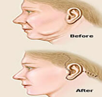 Before and after Illustrations of a showing how a Face lift with neck lift is accomplished.