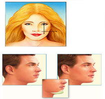 Illustration of a woman and a man showing how facial implants are accomplished.