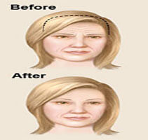 Before and after illustration of a woman showing how Forehead Lift is accomplished.