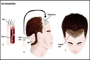 Before and after illustration of a man's head showing the results of a neck sculpting hair transplant procedure in Costa Rica.