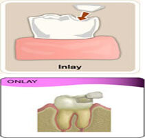 Picture of an inlay and onlay procedure in Costa Rica.