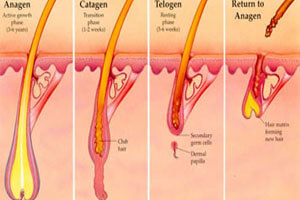 Illustration of a Fractional CO2 laser as it treats hair removal.