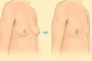 Before and After illustration of a male breast reduction procedure as performed in Costa Rica.