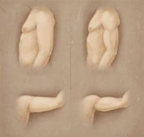 Before and After illustration of a male liposuction procedure as performed in Costa Rica.